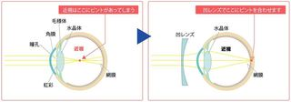 近視の図.JPG