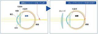 遠視の図.JPG